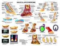 Equine - Horse Navicular Syndrome Wall Chart